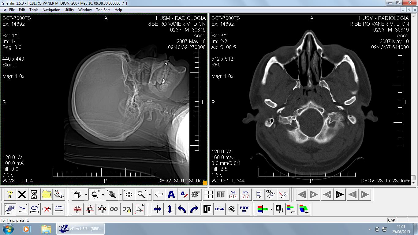 сроки хранения рентгеновских снимков